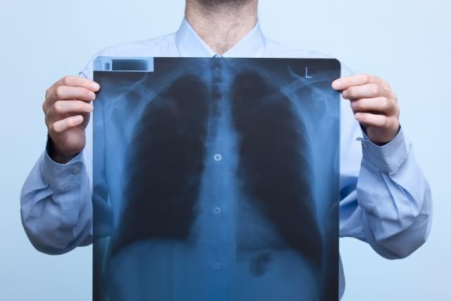 iefap \u203a notícias \u203a mitos e verdades sobre os exames de raios xvocê já deve ter ouvido aquele papo de que os exames de raios x são superperigosos e que podem nos levar a desenvolver vários problemas de saúde,